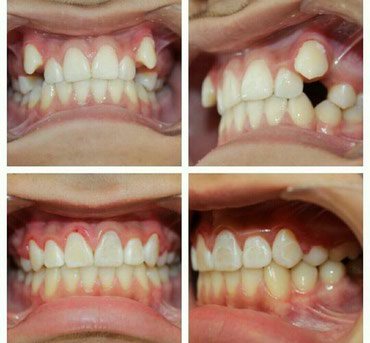 Dentist | Braces systems, plates
