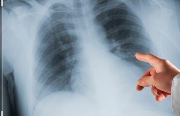 brusok evlər - Azərbaycan: Evlərə rentgen müayinəyə gedilir. Müayinəyə rəsmi Həkim cavabı