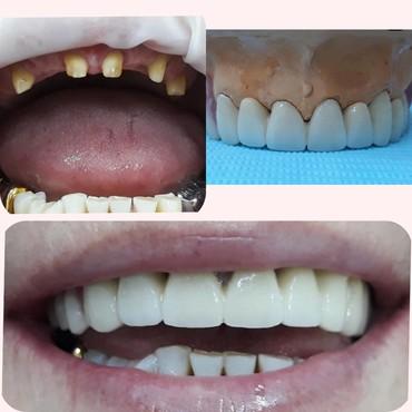 стоматологических услуг в Кыргызстан: Ночной приём все виды стоматологических услуг работаю без выходных