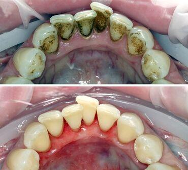 15563 объявлений: Стоматолог | Реставрация, Протезирование, Чистка зубов | Консультация, Круглосуточно