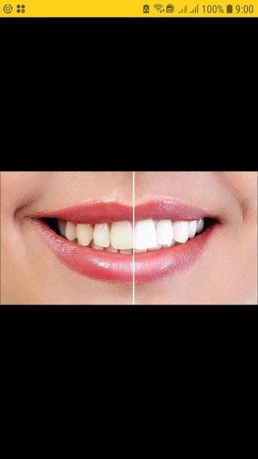 услуги стоматолога в Кыргызстан: Услуги стоматологии.Акция!Консультация бесплатно. Фотопломбы от 300