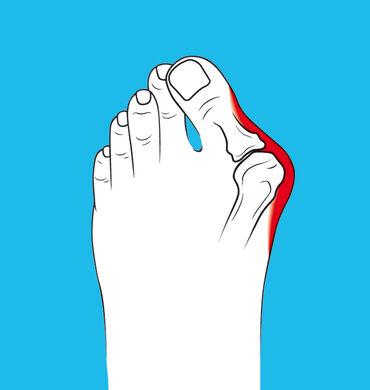 Лечение косточки, вальгусной деформации большого пальца ногиУ вас