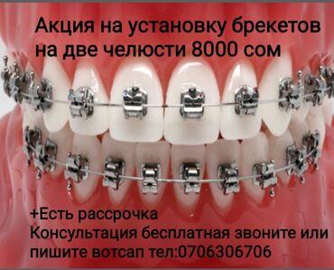 лечение грыжи позвоночника лазером в бишкеке отзывы в Кыргызстан: Стоматолог | Брекет системы, пластинки | Консультация, Круглосуточно