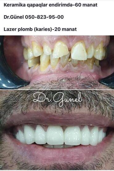 вакансии ассистента стоматолога в Азербайджан: Стоматология