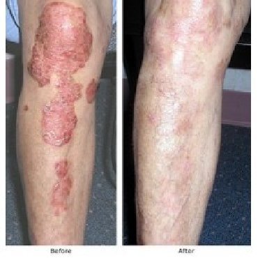 Psoriasis is a skin disorder, in which patient is disturbed with itchi