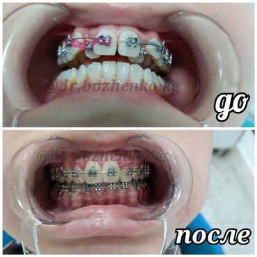 ассистент стоматолога бишкек in Кыргызстан | СТОМАТОЛОГИЯ: Стоматолог | Брекет системы, пластинки | Консультация, Круглосуточно