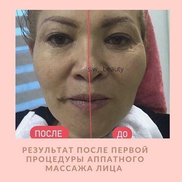 siemens старые модели в Кыргызстан: Косметолог | Чистка кожи, Другие услуги косметологов | Сертифицированный косметолог