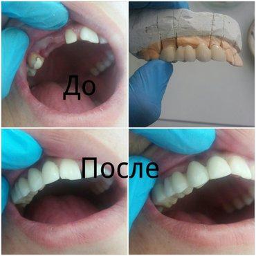 Стоматология Doctor denta: в Бишкек