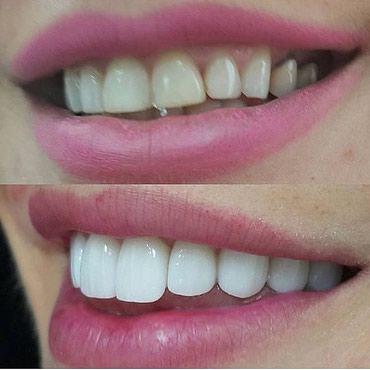 Bakı şəhərində Diş qapağının növü: Zirkonyum