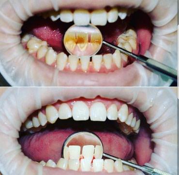 стоматологических услуг в Кыргызстан: Все виды стоматологических услуг1) протезирование 2) удаление 3)