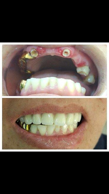 стоматологических услуг в Кыргызстан: Здравствуйте. меня зовут Жолдошов Санжар. Я оказываю весь спектр