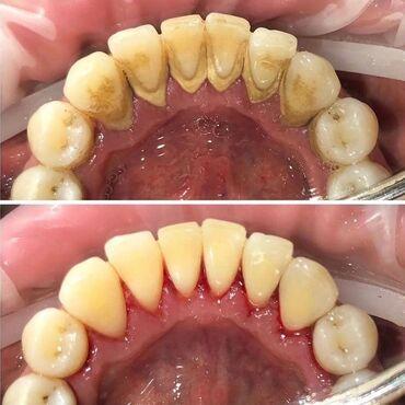 реставрация обуви бишкек в Кыргызстан: Стоматолог | Реставрация, Протезирование, Чистка зубов | Консультация, Круглосуточно
