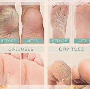 Очишает ноги и увлажняет кожу ного