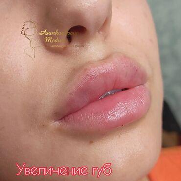 216 объявлений: Косметолог | Увеличение губ | Консультация, Гипоаллергенные материалы, Сертифицированный косметолог