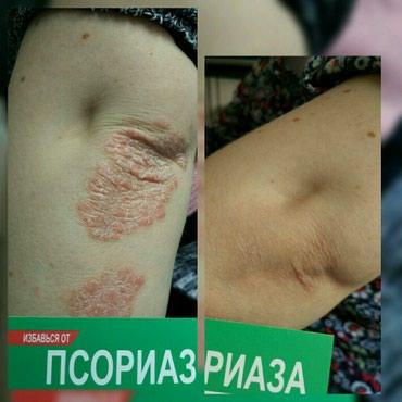 Псориаз-это хороническая заболевания в Бишкек