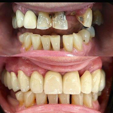 вакансии ассистента стоматолога в Азербайджан: Zircon diş qapaqlari