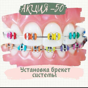 рамка для номера авто перевертыш в Кыргызстан: Стоматолог | Брекет системы, пластинки