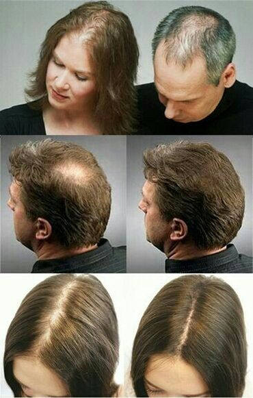 Лысеете? Волосы выпадают? Седыми становятся ? Проблемы с мужской