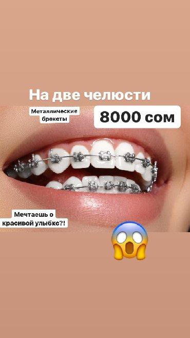 стоматологические услуги в Кыргызстан: Стоматологические услуги:ЛечениеУстановка брекет