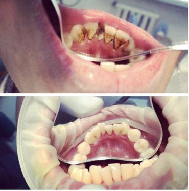 Профессиональная чистка зубов! в Бишкек