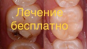 лечение грыжи позвоночника лазером в бишкеке отзывы в Кыргызстан: Стоматолог | Фотопломбы