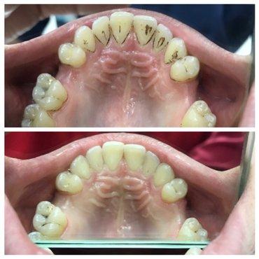 Ультразвуковая чистка зубов! в Бишкек