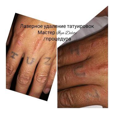 работа в дубае для кыргызстанцев в Кыргызстан: Быстрое полное удаление татуировки невозможно — об этом честно говорят