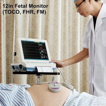 bütöv - Azərbaycan: Böyük ekran 12in Fetal Monitor standart TOCO FHR, FM, CTG maşınDölün