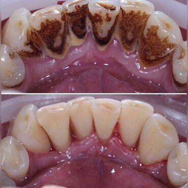 Стоматолог   Реставрация, Протезирование, Чистка зубов   Консультация, Круглосуточно