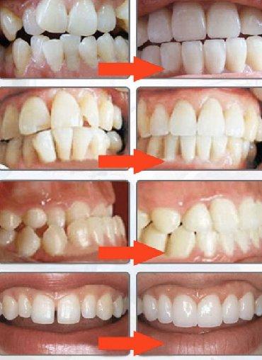 салон beauty club в Кыргызстан: Врач стоматолог-ортодонт. Все виды ортодонтического лечения* Брекет