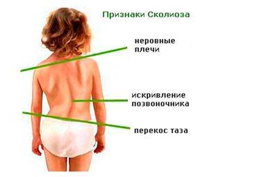 Корсеты, корректоры осанки, пояса для спины, реклинаторы9-11