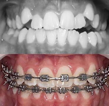 Установка брекет-систем ortho classic ( USA) на обе челюсти 10 тыс