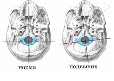 Мануальная терапия,Массаж лечебный и ХиропрактикаОстеохондроз Сколиоз