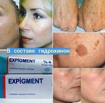 Экспигмент-лучший крем от пигментации для лица и тела -он отбеливает в