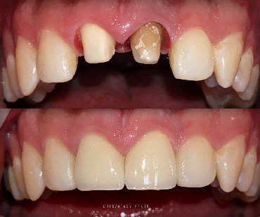стоматологических услуг в Кыргызстан: Стоматолог Бишкек  Оказание стоматологических услуг  Бесплатная консул