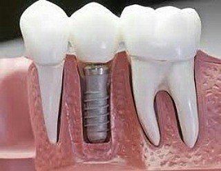 Стоматология Dental Clinic Город.БИШКЕК Стоматологические услуги в Бишкек