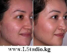 Наши услуги:  • Лазерное удаление волос • Фотоомоложение • в Бишкек