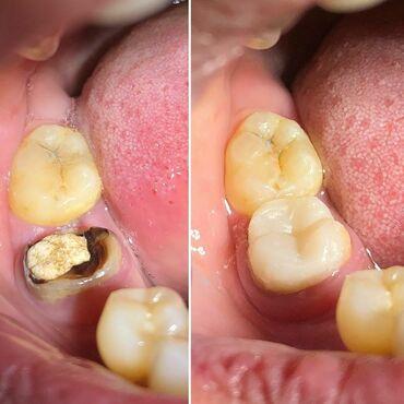 вакансии ассистента стоматолога в Азербайджан: Dişlerin berpasi