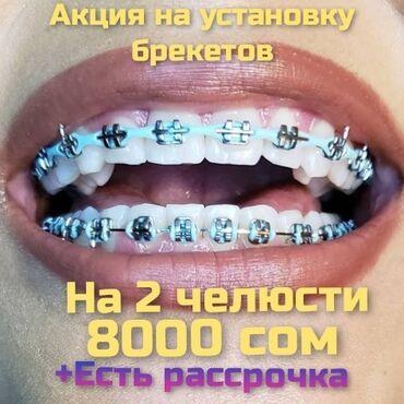 золото в рассрочку бишкек in Кыргызстан | SAMSUNG: Стоматолог | Протезирование, Чистка зубов, Удаление | Консультация