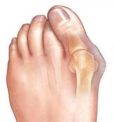 От косточки на большом пальце ногНочные и дневныеЦены от 350 до 1800