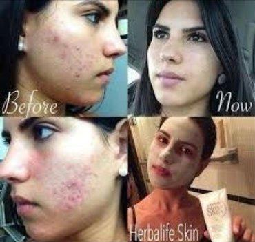 Amerika istehsalı -Üzə qulluq-Skin seriyası.paraben yox,sulfat
