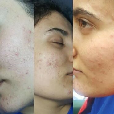 - Azərbaycan: Mualicevi kremler instagram saglam_xanimlar