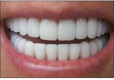 Стоматолог | Реставрация, Протезирование, Чистка зубов