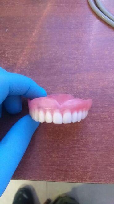 Продаю зубные протезы не дорого звоните по мегаком