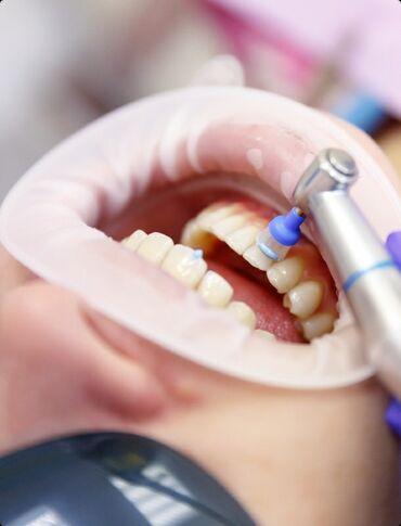 gan356 air в Кыргызстан: Профессиональная чистка зубов системой Air Flow. Удаление зубного нал