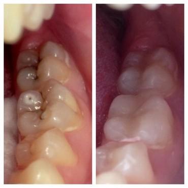 услуги стоматолога в Кыргызстан: Лечение зубов!    Профессиональная чистка зубов. Эстетическая реставра