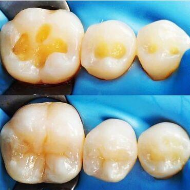 лечение грыжи позвоночника лазером в бишкеке отзывы в Кыргызстан: Стоматология  Профессиональная чистка полости рта   Лечение кариеса 7