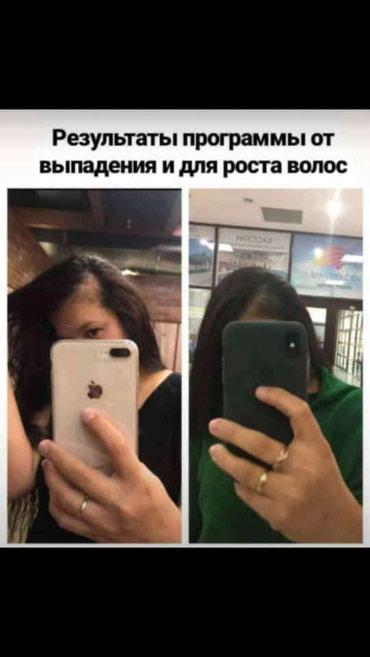 Сыворотка 2650сом. результат 1 ай ичинде. в Бишкек