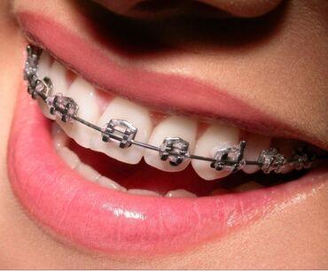 Стоматолог | Брекет системы, пластинки | Консультация