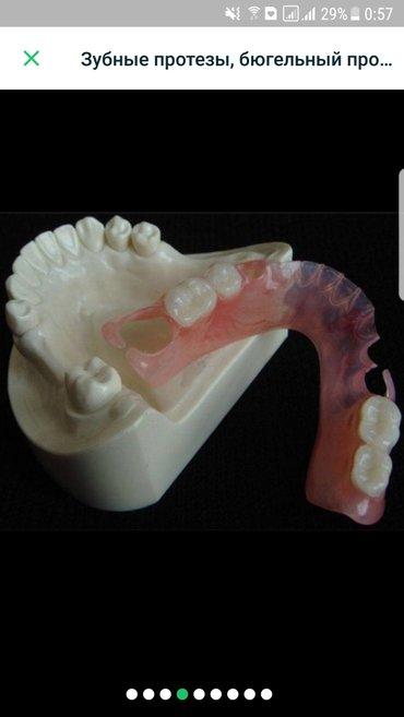 стоматолог ортопед,изготовление зубных протезов,микро протезов,мягких  в Бишкек